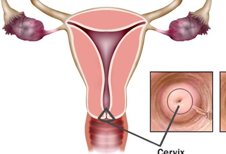 Ciri-ciri Kanker Serviks yang Bisa Diwaspadai